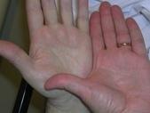 2013網頁照:anemia left hand.jpg